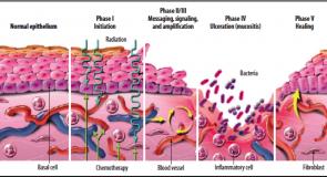 Noutăți terapeutice în tratamentul mucozitei orale