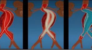 Endoprotezare de aorta abdominala, cu singurul sistem revolutionar care sigileaza sacul anevrismului