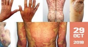 Psoriazisul, a 5-a cea mai importanta boala cronica netransmisibila