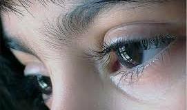 Săptămâna Mondială a Glaucomului