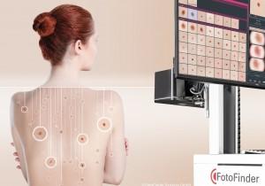 FotoFinder prezinta generatia urmatoare de sisteme pentru detectarea timpurie a cancerului de piele