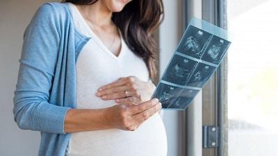 Impactul explorărilor radiologice în timpul sarcinii