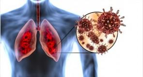 Prioritizarea cancerului pulmonar după COVID-19