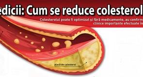 Medicii: Cum se reduce colesterolul?