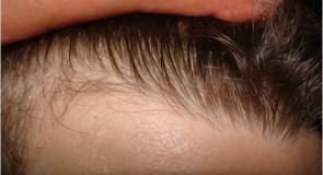 Implantul de păr în cabinetul de dermatologie