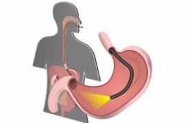 Investigații gastroenterologice decontate de CASMB