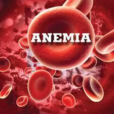 Anemia prin carenţă de fier