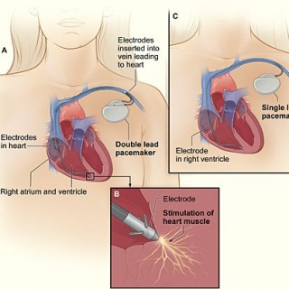Viaţa cu stimulator cardiac