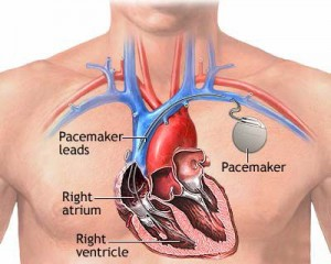 stimulator cardiac