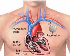 stimulator cardiac
