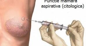 Punctia biopsie mamara