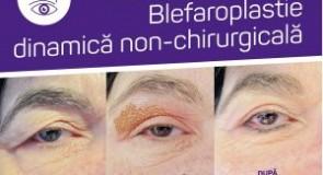 Descoperiti tratamente estetice unice – Blefaroplastia